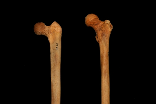 Femur_Inclination