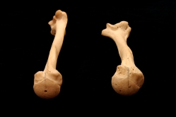 Humerus_Torsion_2